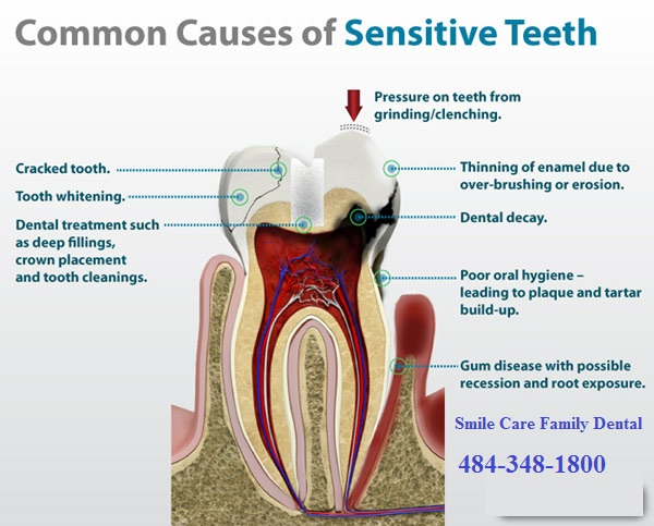 http://www.dentistchestersprings.com/wp-content/uploads/2014/01/Sensitive-teeth-causes-Smile-Care-Family-Dental.jpg
